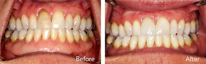 Gum Tissue Grafting Before and After