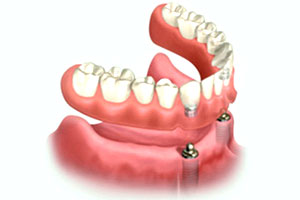 Denture Stabilization Melbourne
