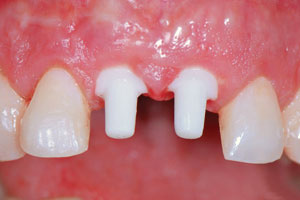 Metal-Free Dental Implants Melbourne