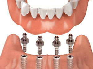 Full Dental Rehabilitation Melbourne