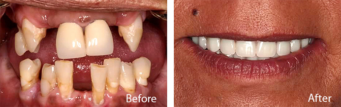 Solid Bite Teeth Replacement